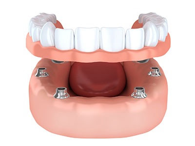 Implant Dentures Carrollton at Hebron Smiles