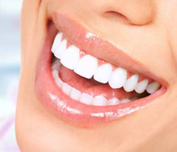 Advantages of Composite Fillings in Carrollton area Image 3
