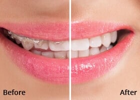 Dentist Carrollton  - Before After Teeth Whitening Case 01