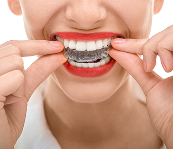 Dr. Adnan Saleem at Hebron Smiles offers options for clear braces on teeth near Carrollton, TX