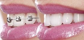 Dentist Carrollton - Braces