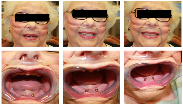 Before & After Denture, Dentures Carrollton