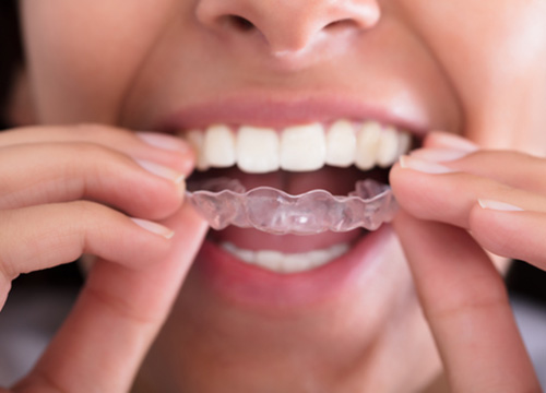 Invisalign Will Change Your Life and Smile Carrollton in Carrollton area