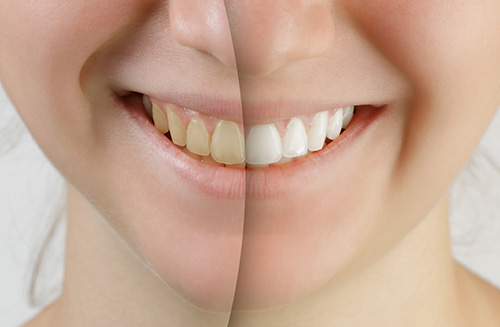 Dr adnan Saleem, Teeth whitening products available for Carrollton, TX area patients