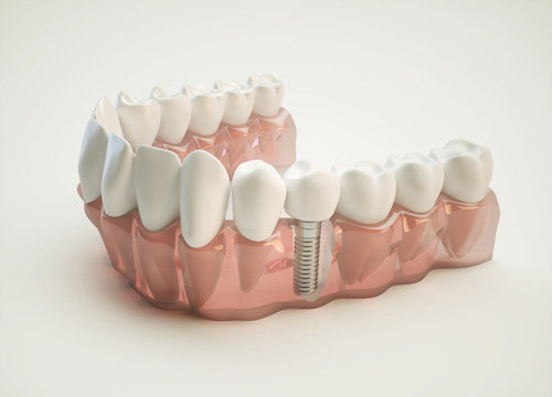 Tooth Replacement Cost and Benefits in Carrollton area