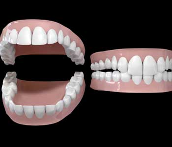 Treatment Dentures Tooth Loss Carrollton, TX