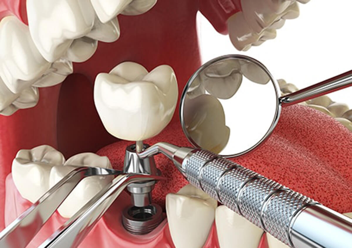 WHAT IS THE DENTAL IMPLANTS PROCEDURES LIKE FOR CARROLLTON, TX AREA PATIENTS?