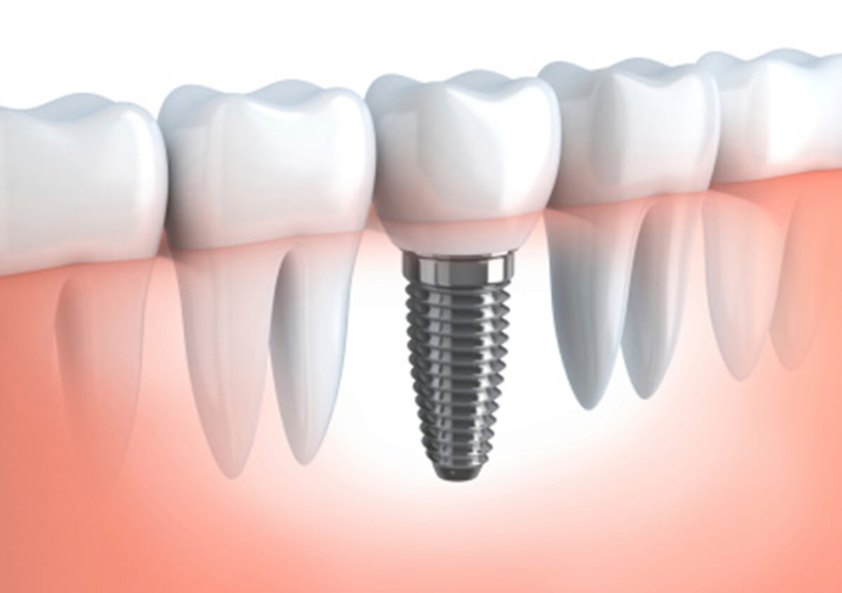 DENTAL IMPLANTS ARE BEST TOOTH RESTORATION OPTION FOR CARROLLTON AREA PATIENTS