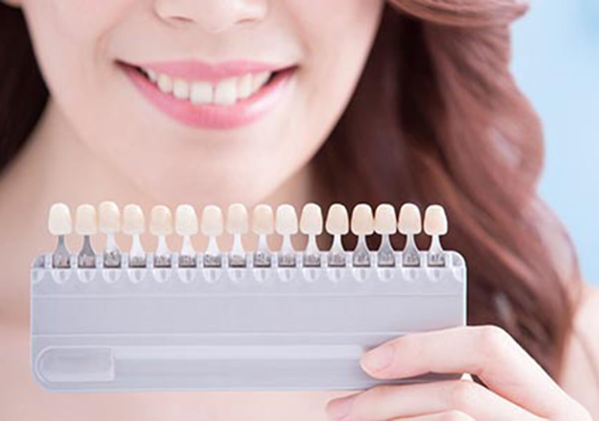 LOOK AND FEEL YOUR BEST WITH PROFESSIONAL TEETH WHITENING IN CARROLLTON, TX