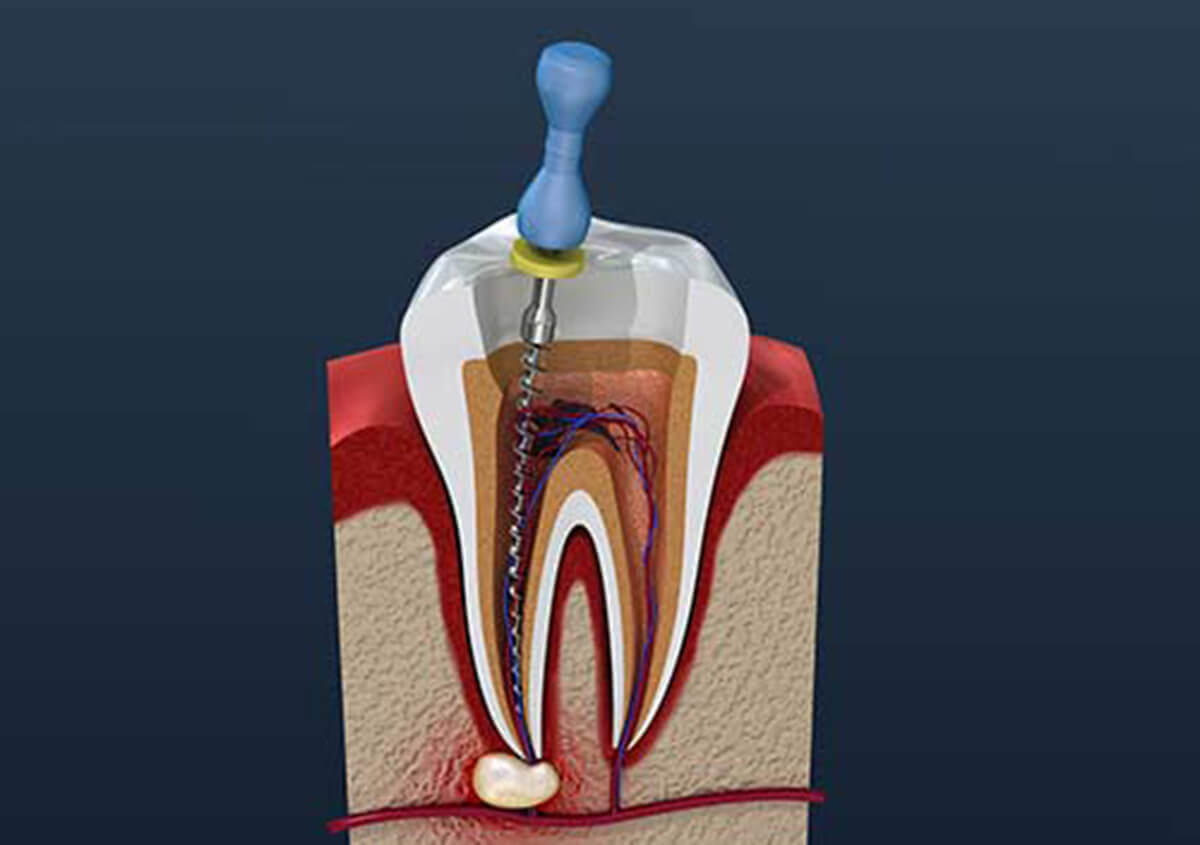 Save Your Tooth With a Root Canal in Carrollton TX area