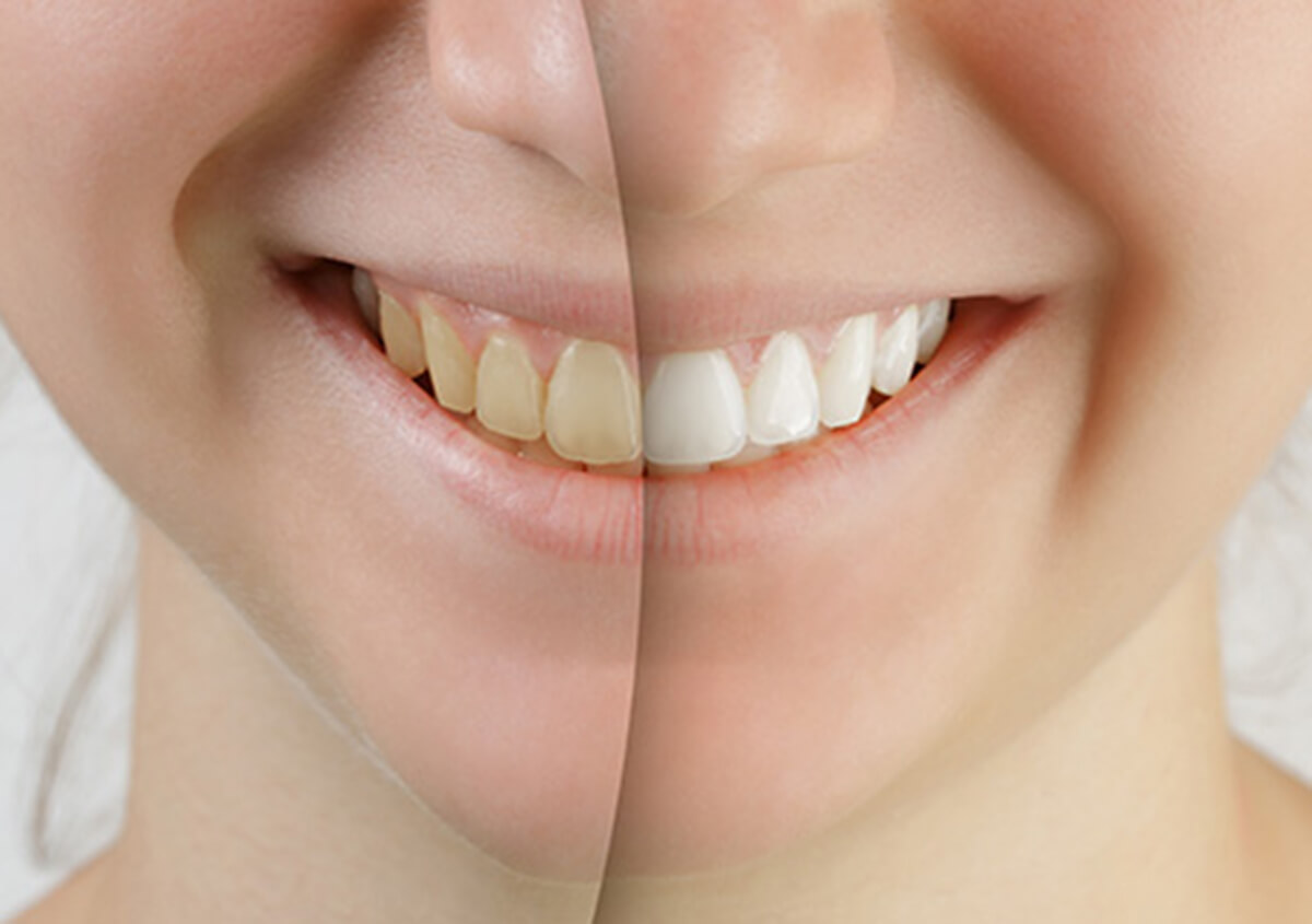 TEETH WHITENING PRODUCTS AVAILABLE FOR CARROLLTON, TX AREA PATIENTS