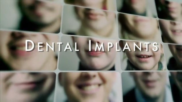 Dental Implants Educational Video